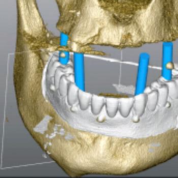 CBCT - Elwira Sadlik-Zając - lekarz dentysta, stomatolog, chirurg stomatologiczny - Elstom Zamość